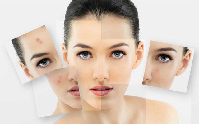 ¿Piel grasa y acné? Mantenlo a raya con esta rutina