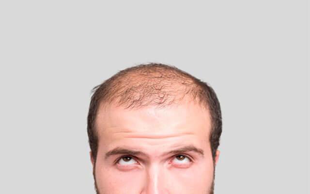 Efectos de la caída del cabello en este otoño 2020: Alopecia